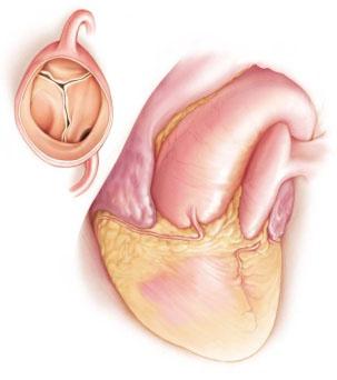 Aortaklep operatie
